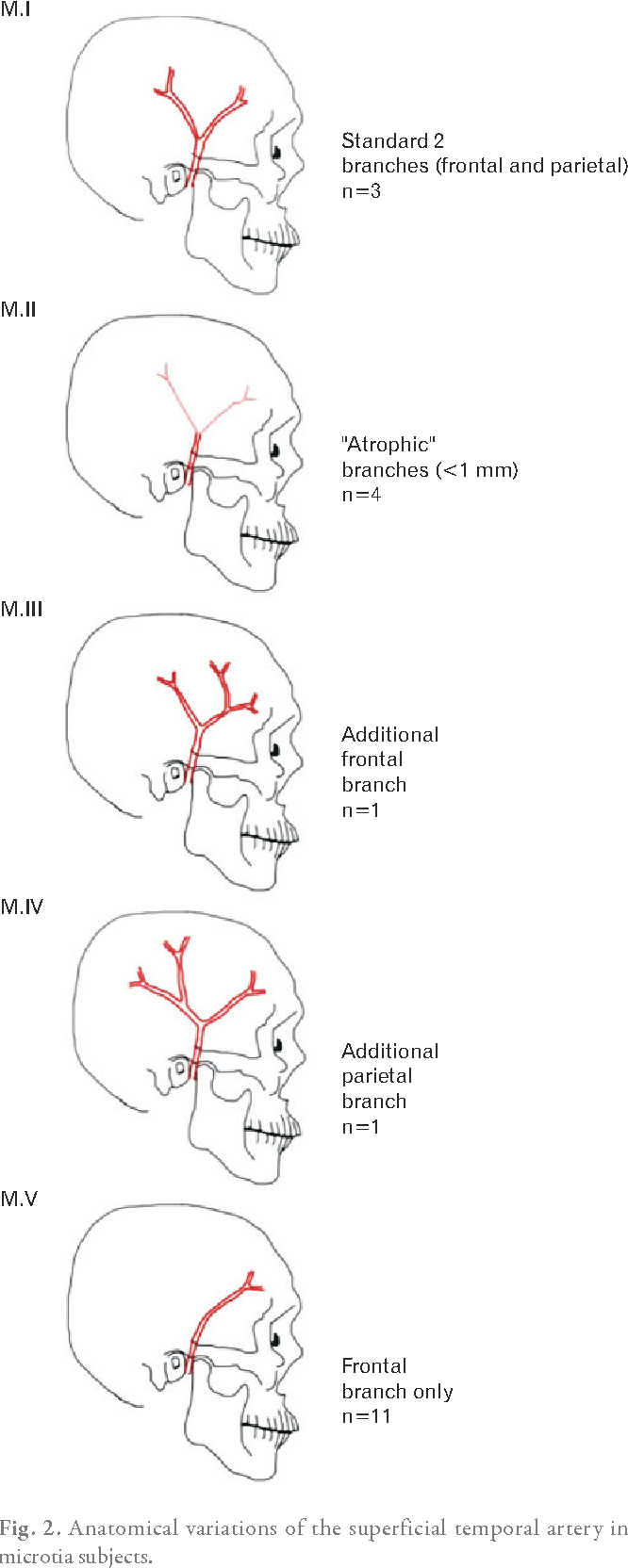Anatomical variants of the superficial temporal artery in patients ...