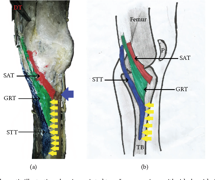 Pes Anserinus Structural Framework And Constituting Tendons Are