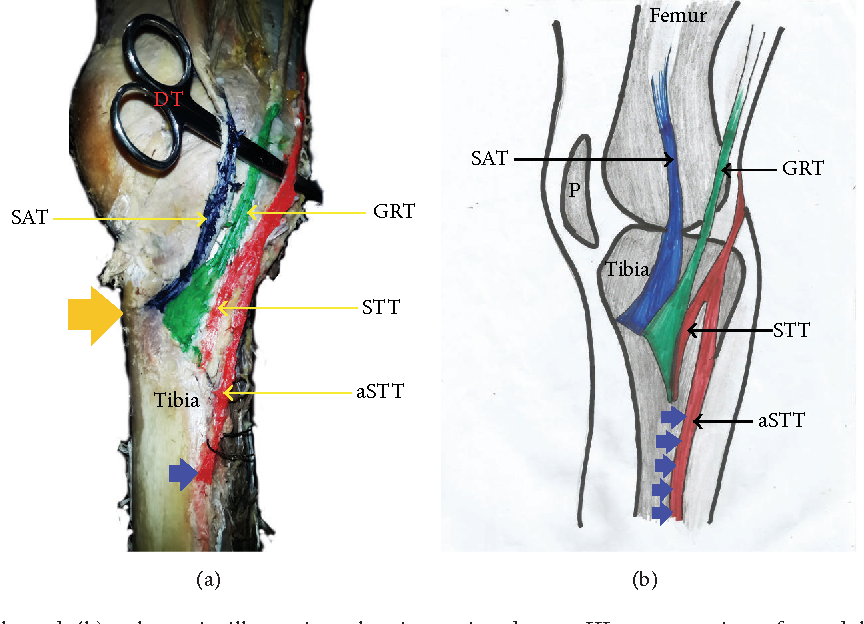 Pes Anserinus Structural Framework and Constituting Tendons Are ...