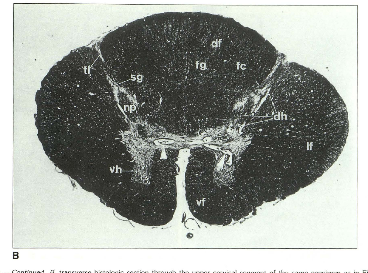 Microanatomy of the excised human spinal cord and the ...