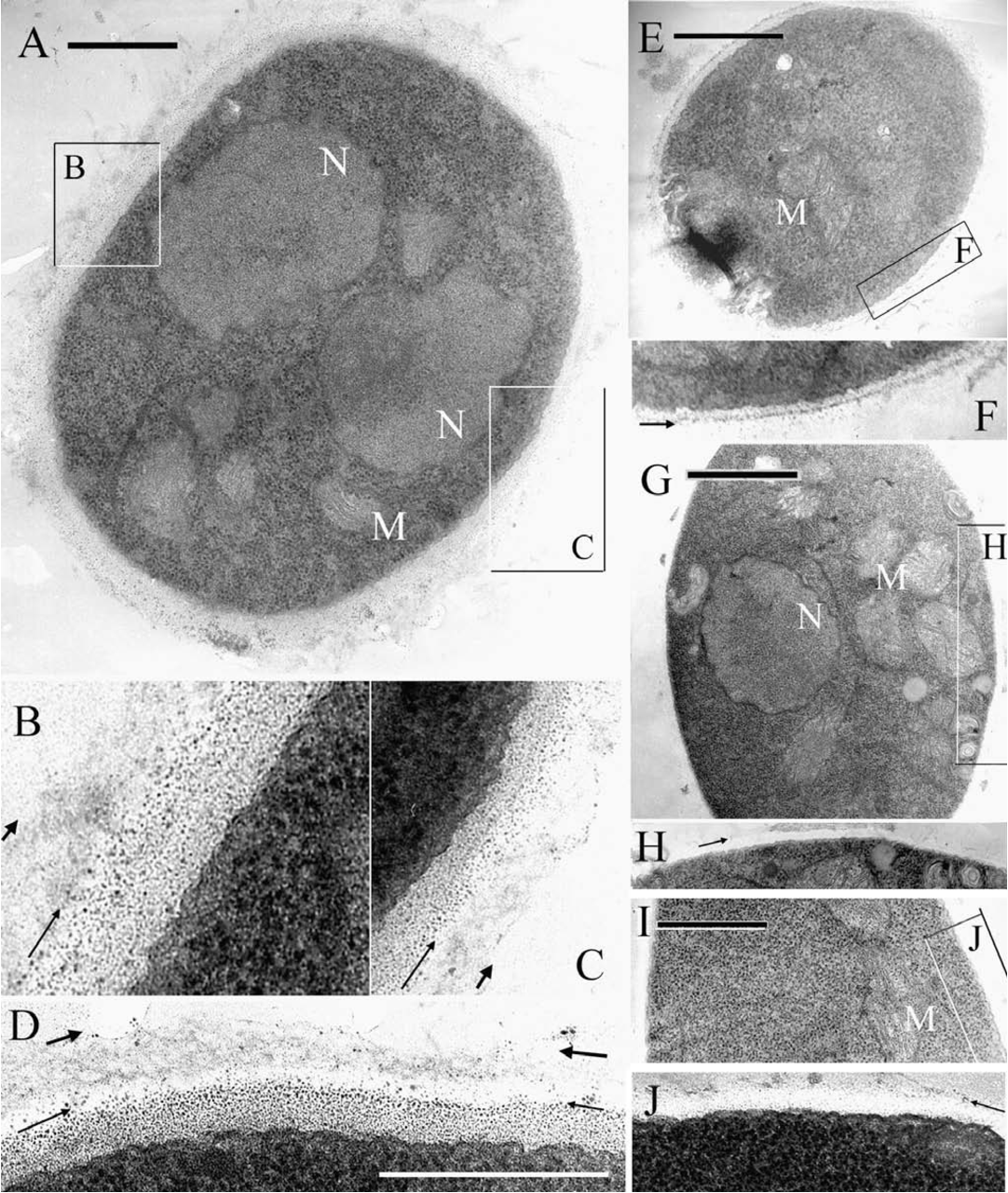Fig. 6. Transmission electron micrographs of Aspergillus nidulans ugmA∆ strain AAE2 (A– D) and wildtype strain AAE1 (E–F) growing on complete medium (CM); AAE2 hyphae growing on CM containing 1 molar sucrose (G–H) or CM containing 10 µg/mL Calcofluor (I–J). Bars in A, E, G, I = 1 µm. Images in B–C, F, H, J are transverse sections that correspond to the boxed regions in A, E, G, I, respectively, and have been contrast-adjusted and magnified to highlight wall structure. Image D is a transverse section of another AAE2 hypha growing on CM for which a full cross section was not available. Arrows indicate the outer edge of the two prominent wall layers for AAE2 hyphae growing on CM (A–D), and the outer wall of hyphae in other samples (F, H, J). N, nucleus; M, mitochondrion.