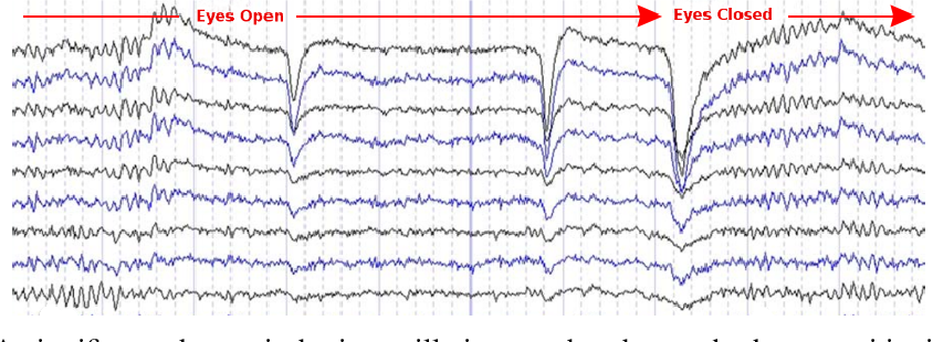 Figure 3 for Computational EEG in Personalized Medicine: A study in Parkinson's Disease