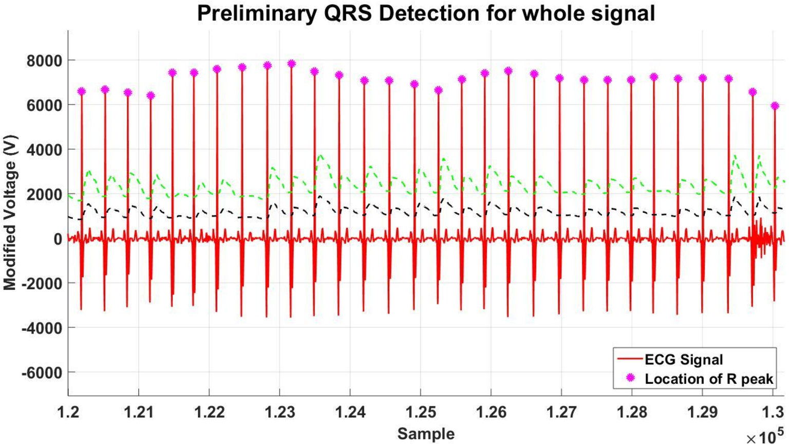 Figure 32 from Cloud-based real-time heart monitoring and