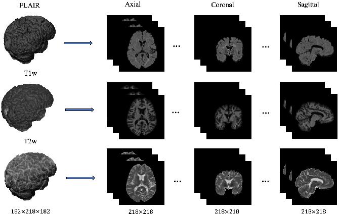 Figure 1 for Multi-branch Convolutional Neural Network for Multiple Sclerosis Lesion Segmentation