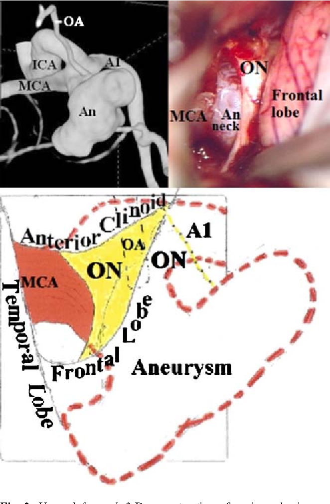 Infraoptic Anterior Cerebral Artery Review Report Of Two Cases And