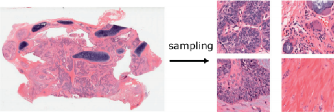 Figure 1 for A State-of-the-art Survey of Artificial Neural Networks for Whole-slide Image Analysis:from Popular Convolutional Neural Networks to Potential Visual Transformers
