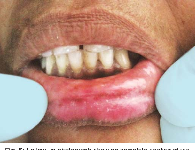 Figure 6 from Cheilitis Glandularis Treated with Intralesional