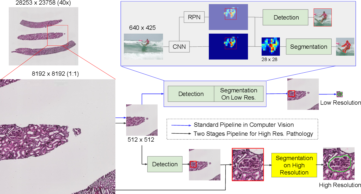 Figure 1 for Instance Segmentation for Whole Slide Imaging: End-to-End or Detect-Then-Segment