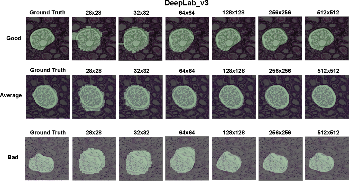 Figure 4 for Instance Segmentation for Whole Slide Imaging: End-to-End or Detect-Then-Segment