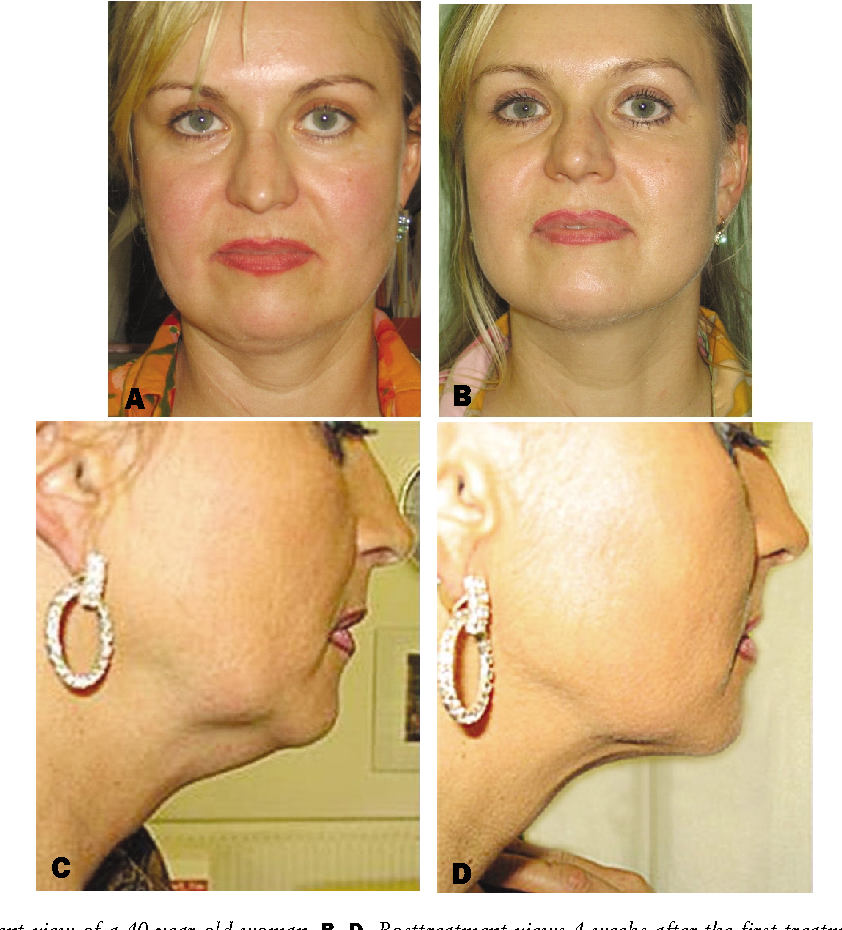 Figure 3 from Injection lipolysis for effective reduction of