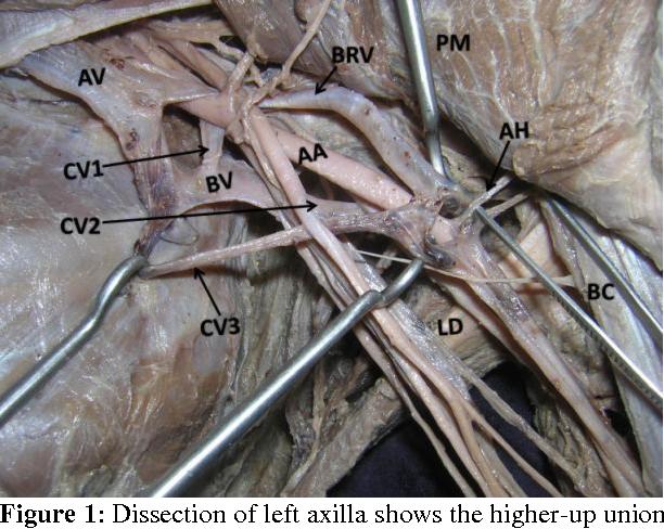 Short Axillary Vein And An Axillary Venous Ladder Formed By Basilic