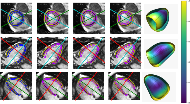 Figure 4 for Probabilistic 3D surface reconstruction from sparse MRI information