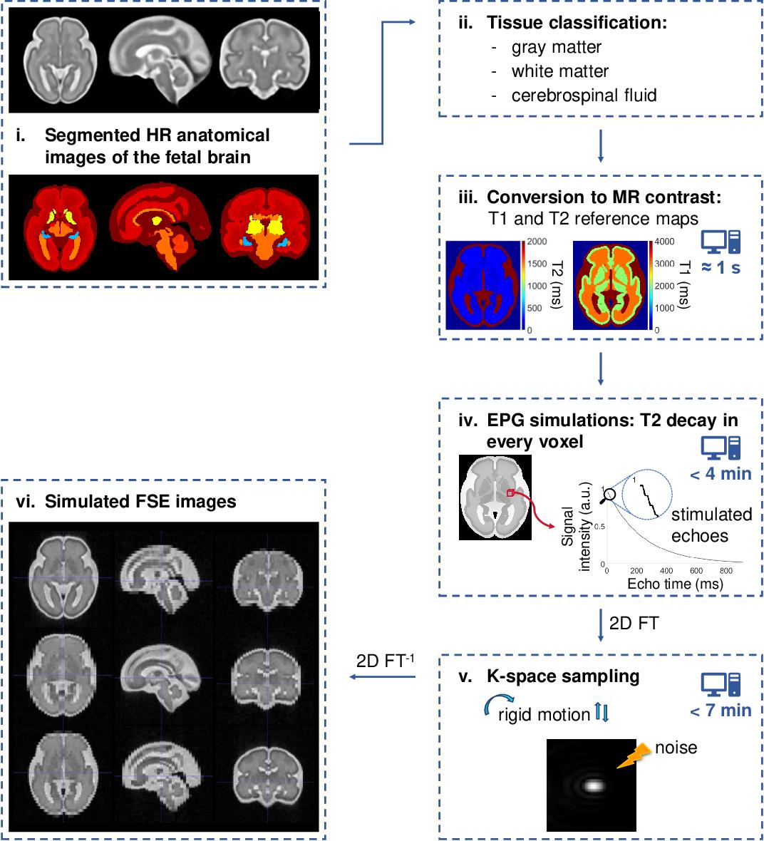 Figure 2 for FaBiAN: A Fetal Brain magnetic resonance Acquisition Numerical phantom