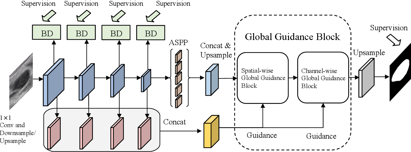 Figure 3 for Global Guidance Network for Breast Lesion Segmentation in Ultrasound Images