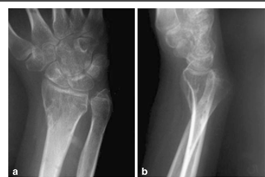 Figure 12 from Ulnar-sided wrist pain. Part I: anatomy and physical ...