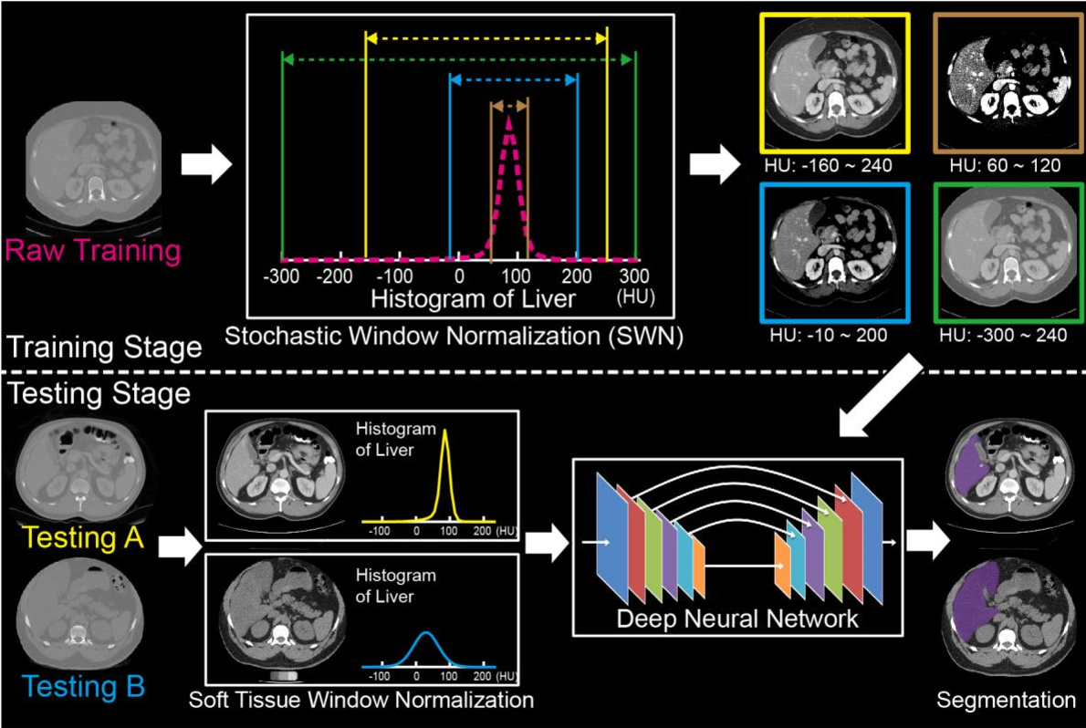 Figure 3 for Stochastic tissue window normalization of deep learning on computed tomography