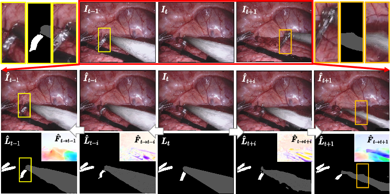 Figure 4 for Learning Motion Flows for Semi-supervised Instrument Segmentation from Robotic Surgical Video