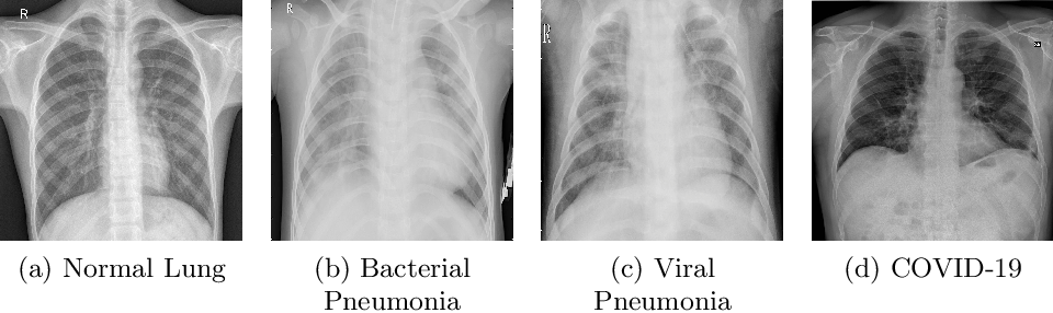 Figure 1 for CovidAID: COVID-19 Detection Using Chest X-Ray