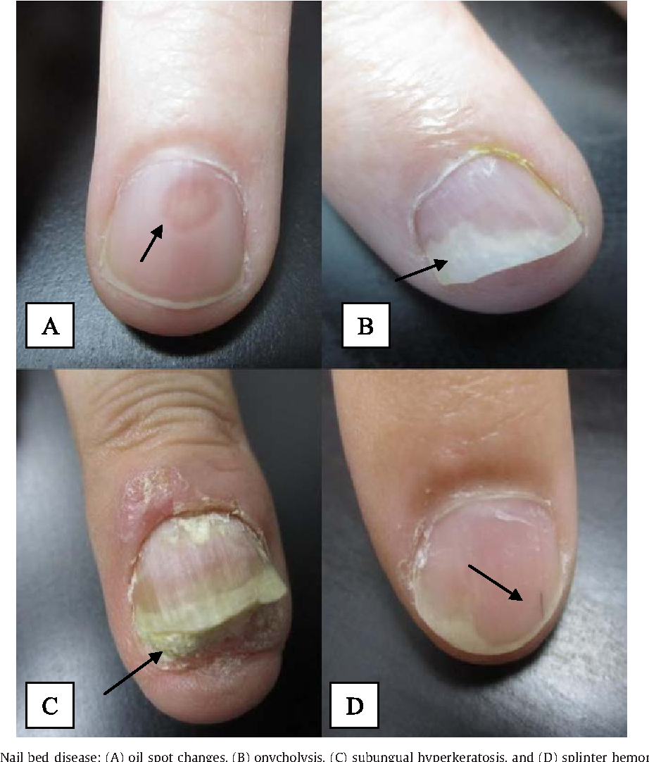 Figure 2 From Psoriatic Arthritis And Nail Changes