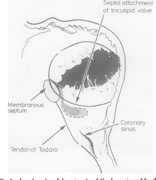 Figure 5 From The Surgical Anatomy Of The Conduction Tissues