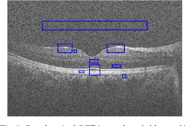 Figure 1 for Application of Independent Component Analysis Techniques in Speckle Noise Reduction of Retinal OCT Images