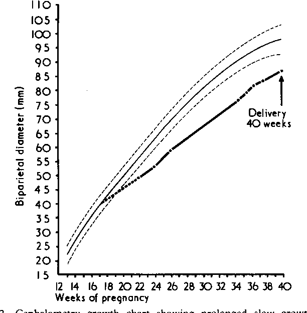 Figure 2 From Follow Up Study Of Small For Dates Babies Semantic