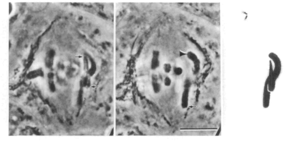 """Fig. 9. Early anaphase in a living grasshopper spermatocyte with the newly made """"SW"""" quadrivalent in a pseudo-2:l orientation with one kinetochore oriented to the upper pole (arrow), two to the lower pole (arrow) and one oriented to both poles (arrowhead). Two focal levels and a composite diagram are shown. The quadrivalent lies fairly close to the equator, a position at which the opposed kinetochore fiber lengths are far out of balance ( 2 ^ — ̂ =5.5 Bar, 10 fun."""