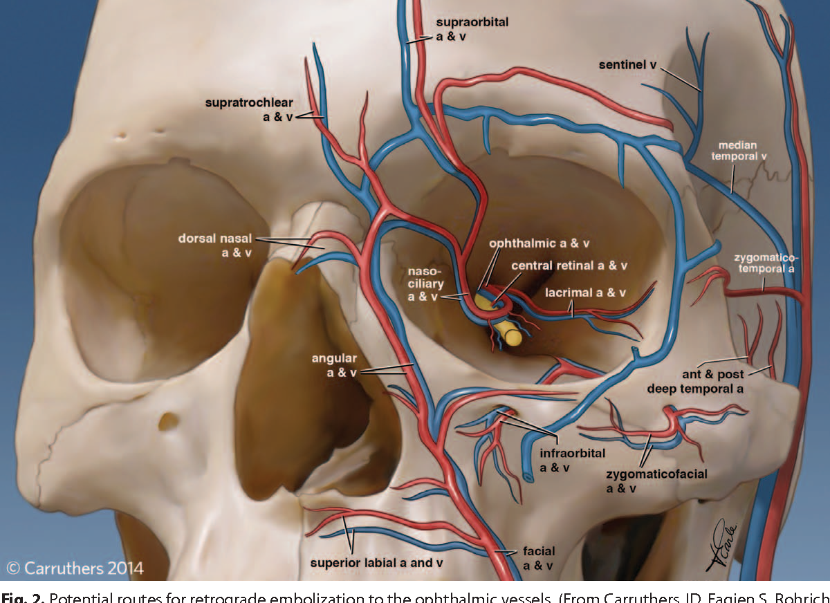 Anatomy of the Facial Danger Zones: Maximizing Safety during Soft ...