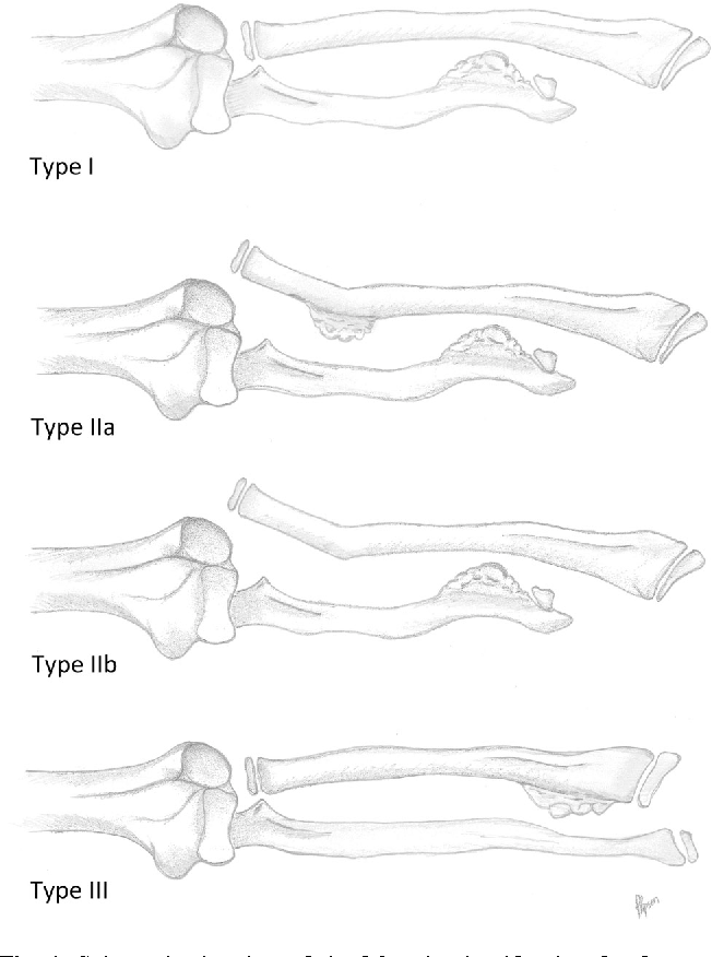Figure 1 From Multiple Osteochondromas Mo In The Forearm A 12