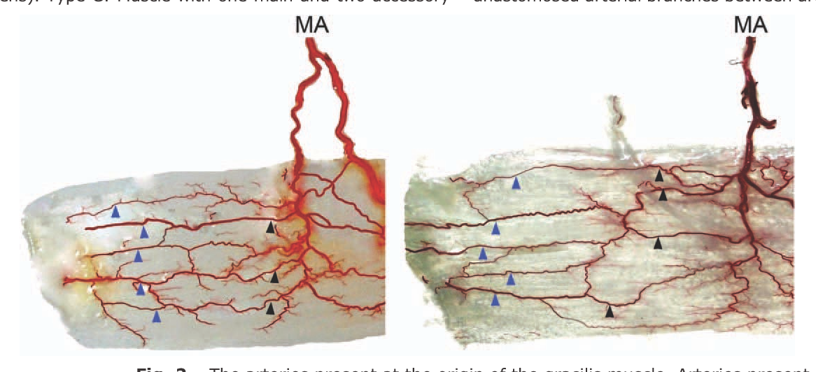 Arterial Anatomy Of The Gracilis Muscle As Determined By Latex