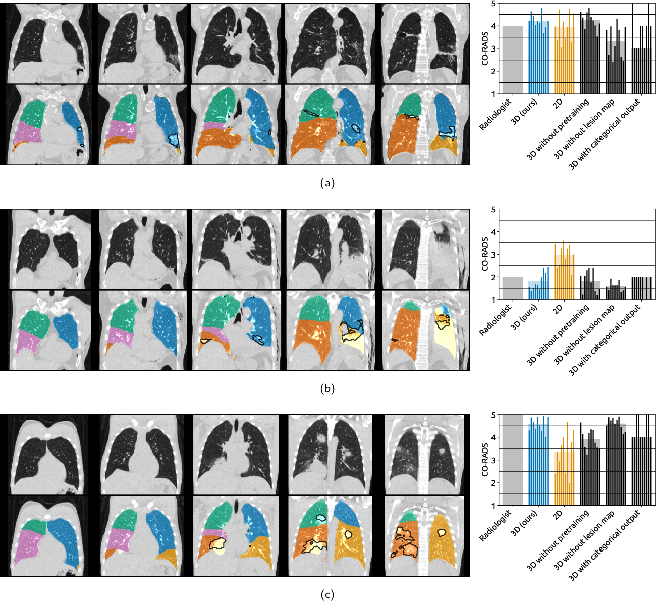 Figure 3 for Improving Automated COVID-19 Grading with Convolutional Neural Networks in Computed Tomography Scans: An Ablation Study