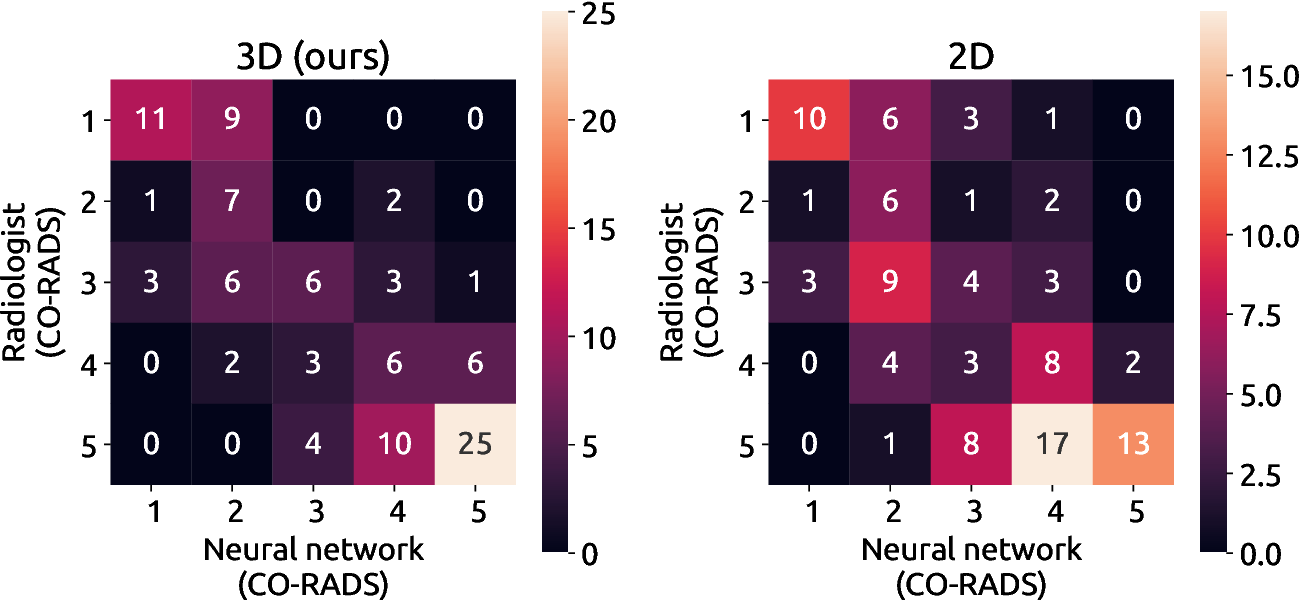 Figure 4 for Improving Automated COVID-19 Grading with Convolutional Neural Networks in Computed Tomography Scans: An Ablation Study