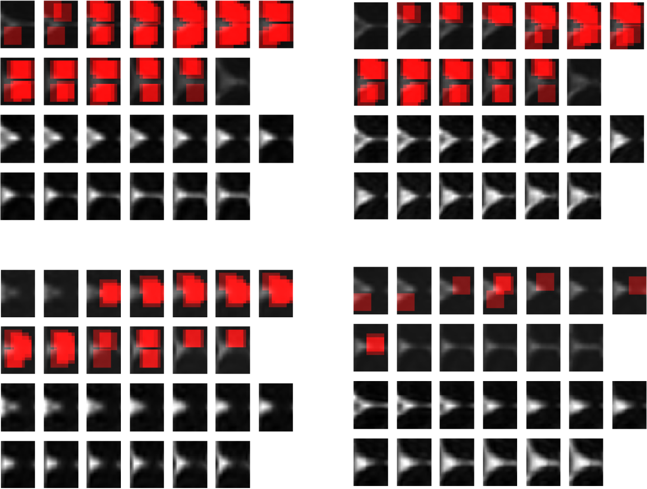 Figure 3 for MTBI Identification From Diffusion MR Images Using Bag of Adversarial Visual Features