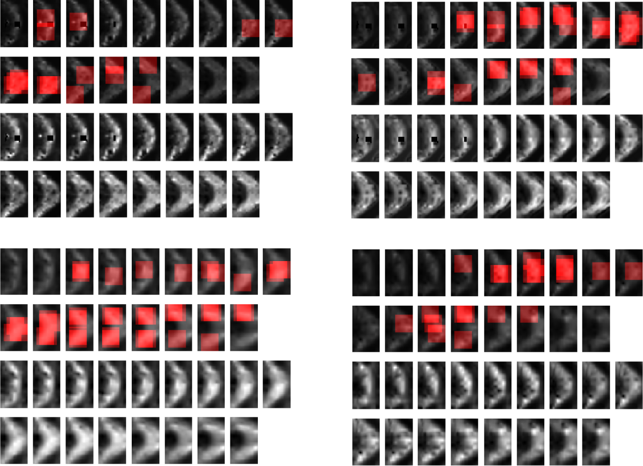 Figure 4 for MTBI Identification From Diffusion MR Images Using Bag of Adversarial Visual Features