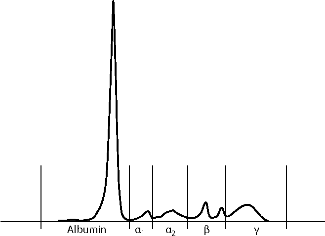 Figure 2. Electropherogram of serum from peripheral venous sample. All electrophoretic fractions are within normal limits.