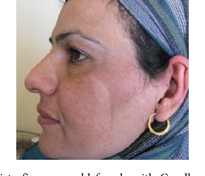 facial melanosis thesis