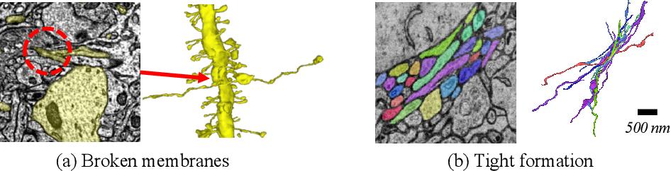 Figure 1 for AxonEM Dataset: 3D Axon Instance Segmentation of Brain Cortical Regions
