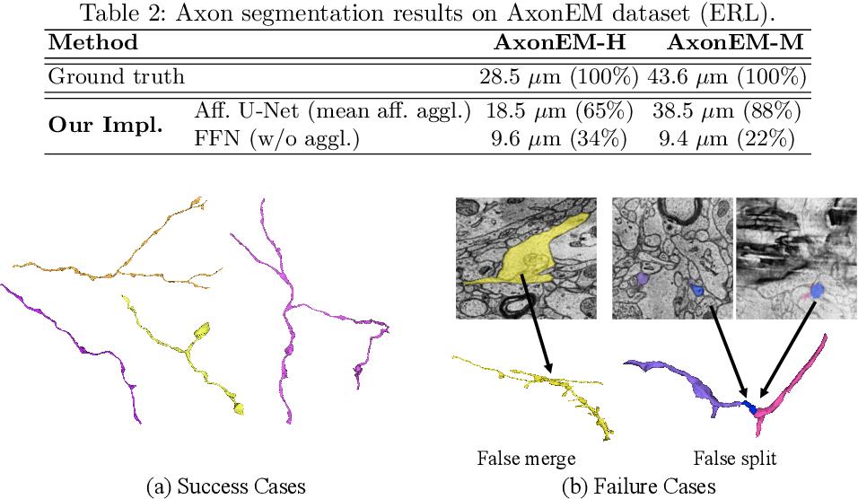 Figure 4 for AxonEM Dataset: 3D Axon Instance Segmentation of Brain Cortical Regions