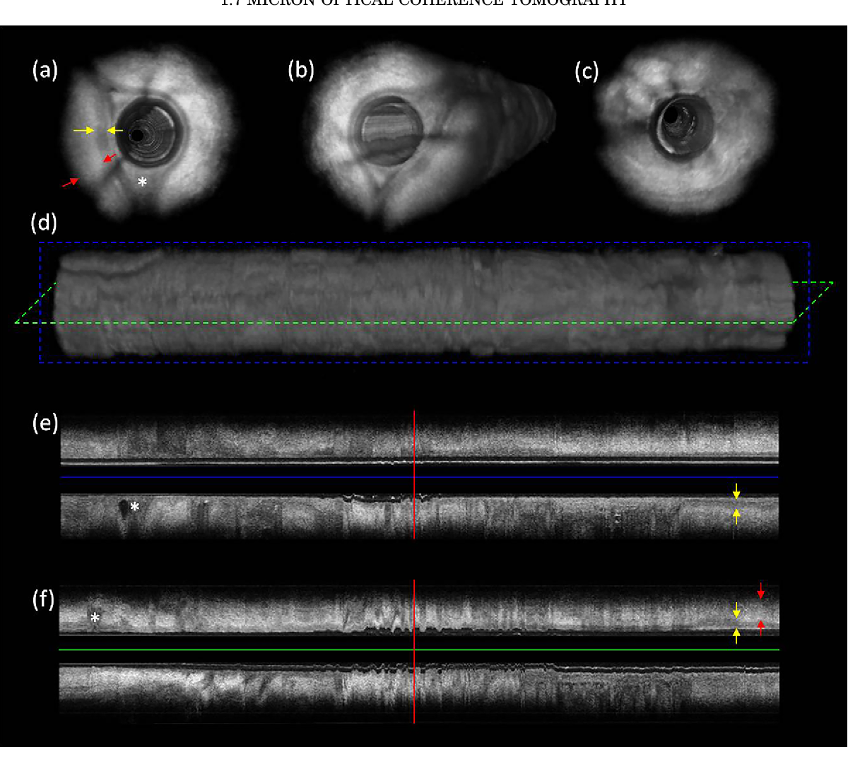 Figure 5 from 1.7 micron optical coherence tomography for vaginal ...