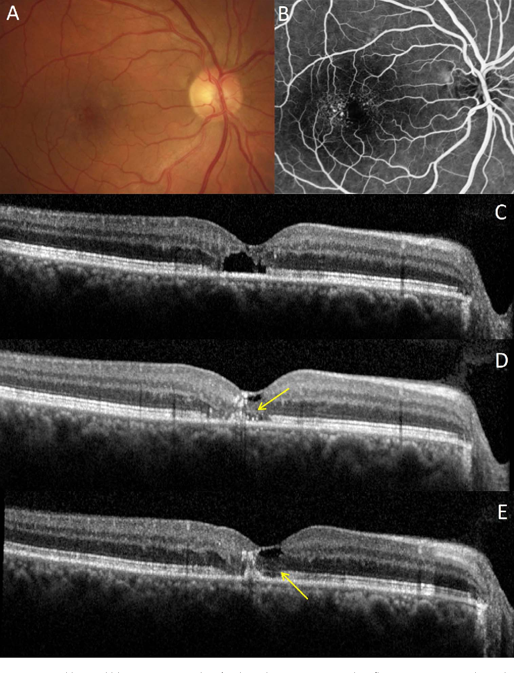 FIGURE 8. Retinal response to NRT in MacTel patient. (A) Baseline fundus color image. (B) Baseline fluorescein angiography with typical telangiectasic vessels temporal to fovea. (C) Baseline OCT image with subfoveal cavitation and loss of IS/OS junction line integrity. (D) Partial restoration of outer nuclear layer and external limiting membrane (arrow) at 5 months; (E) at 12 months, the IS/OS junction line became more visible (arrow).