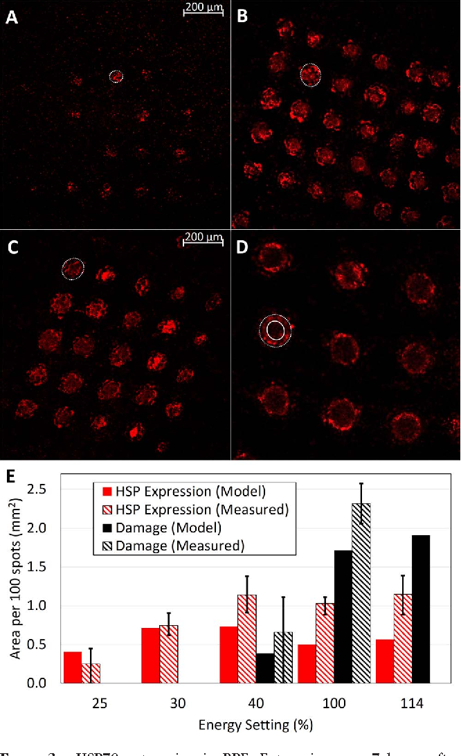 FIGURE 3. HSP70 expression in RPE. Expression area 7 hours after laser treatment at (A) 25%, (B) 30%, (C) 40%, and (D) 100% energy. Expression area is indicated by dotted lines. In 100%, solid line indicates inner limit of HSP70 expression. (E) Average expression (red) or damage (black) area per 100 spots for 25% (NHSP ¼ 200), 30% (NHSP ¼ 238, Ndamage ¼ 250), 40% (NHSP ¼ 150, Ndamage ¼ 250), 100% (NHSP, Ndamage ¼ 54), and 114% (NHSP ¼ 54) energy. Solid bars show model predictions while striped bars depict experimental measurements. Error bars on experimental measurements give interquartile (25%– 75%) range.