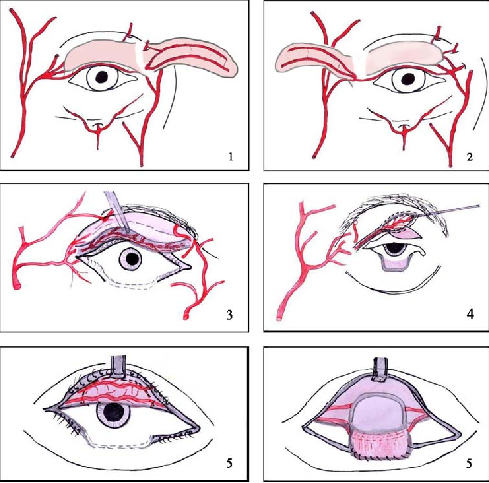 Figure 6 from The vascular system of the upper eyelid. Anatomical ...