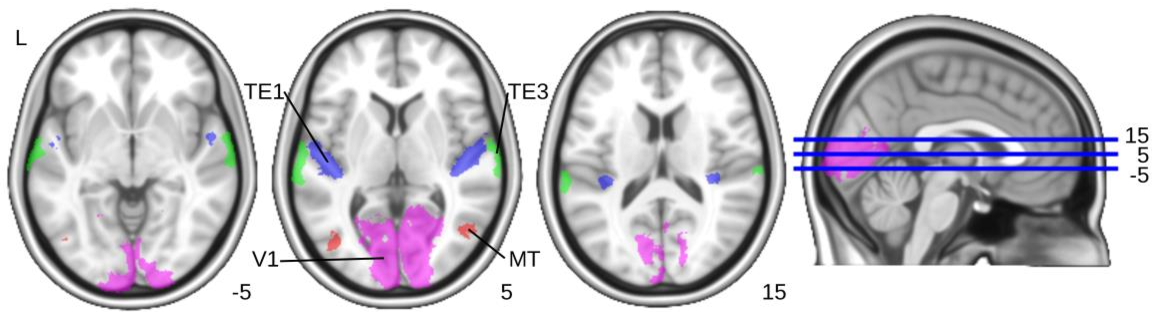 Figure 3 From Functional And Anatomical Brain Networks Brain