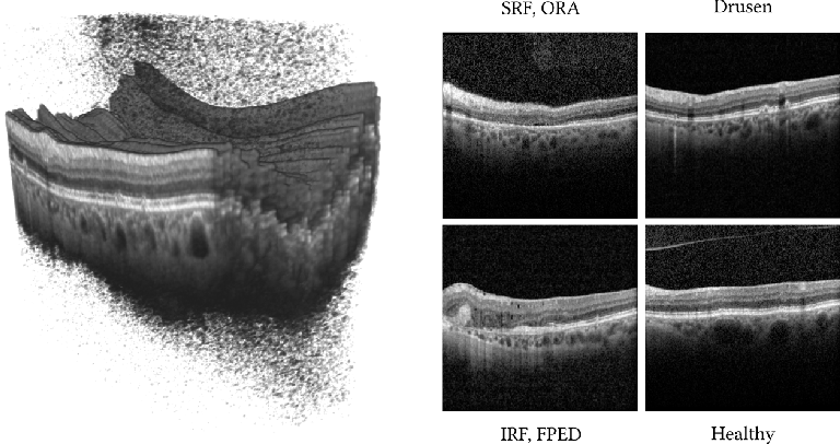 Figure 1 for Fused Detection of Retinal Biomarkers in OCT Volumes