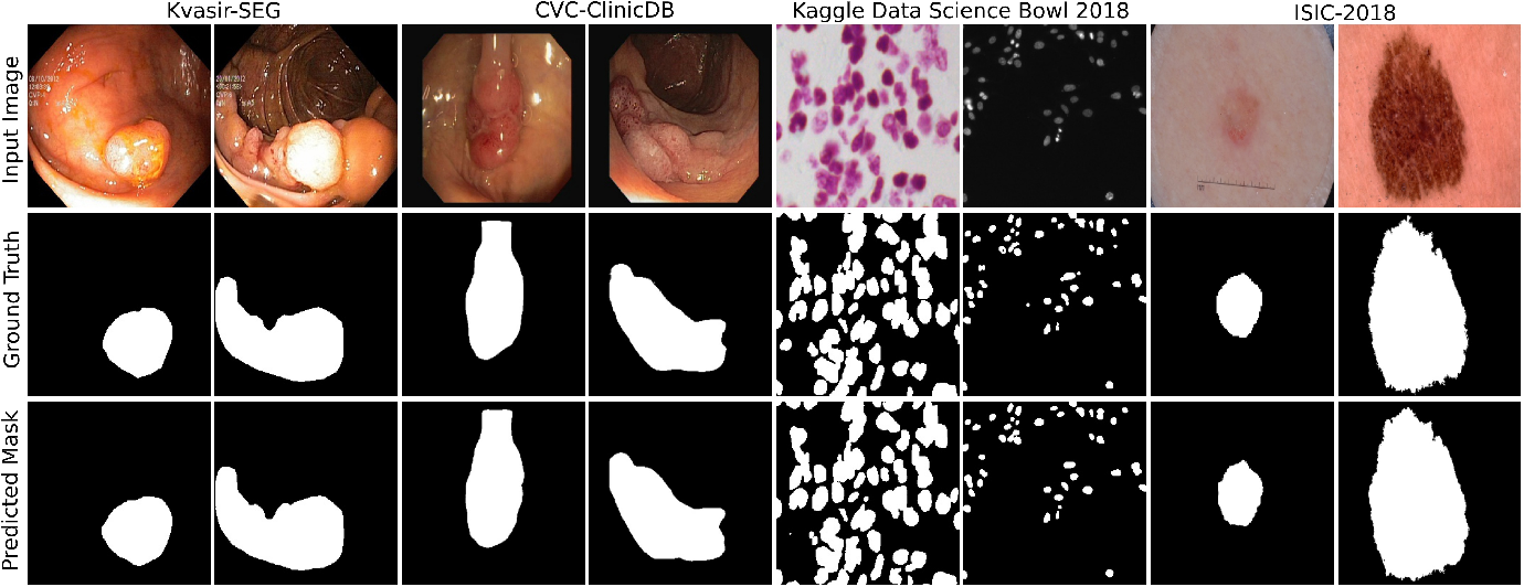 Figure 4 for MSRF-Net: A Multi-Scale Residual Fusion Network for Biomedical Image Segmentation