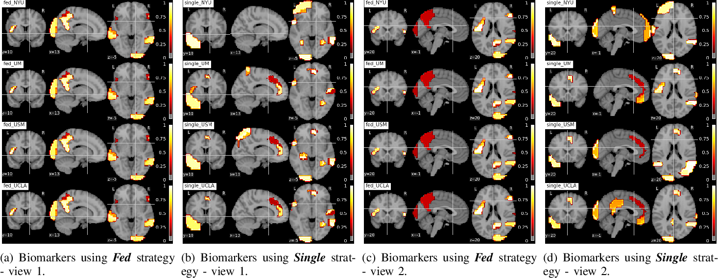 Figure 2 for Multi-site fMRI Analysis Using Privacy-preserving Federated Learning and Domain Adaptation: ABIDE Results