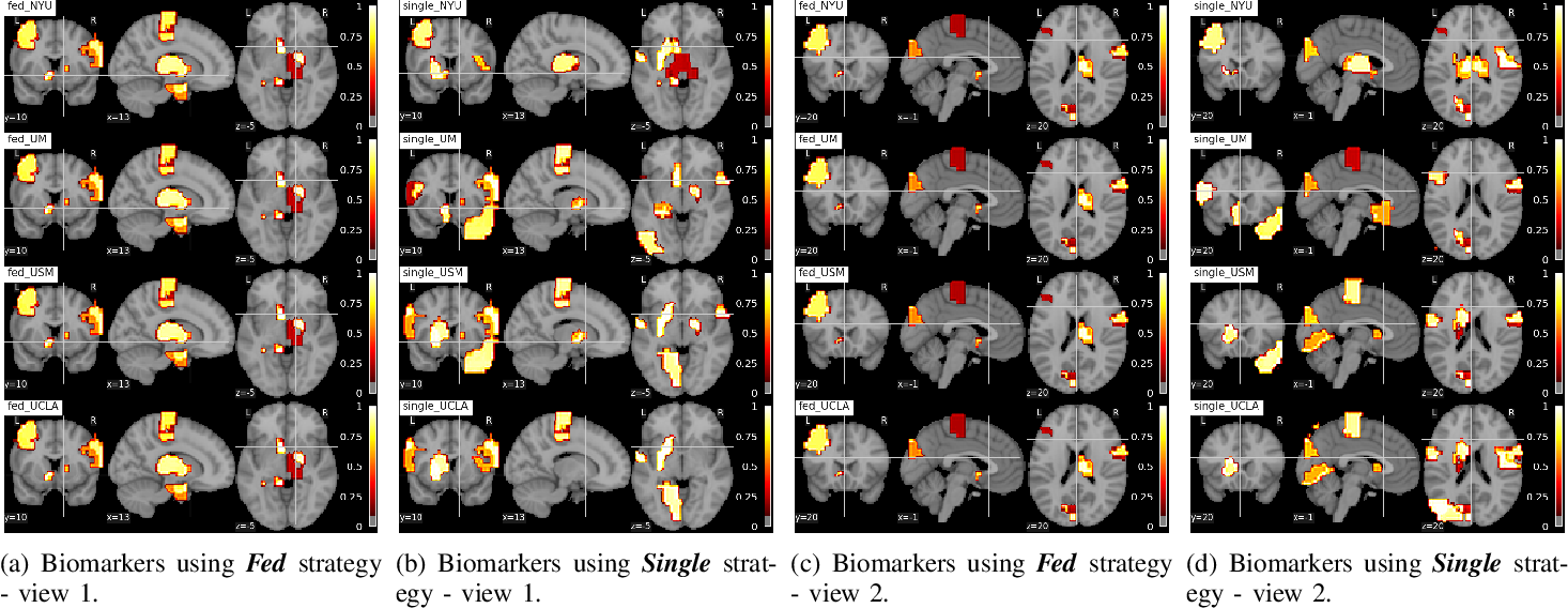 Figure 3 for Multi-site fMRI Analysis Using Privacy-preserving Federated Learning and Domain Adaptation: ABIDE Results