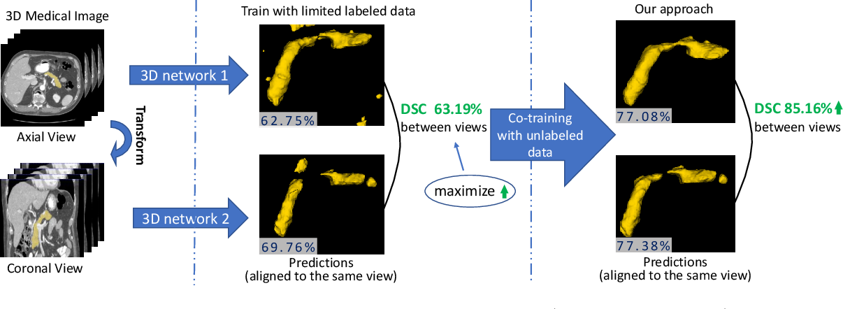 Figure 1 for Uncertainty-aware multi-view co-training for semi-supervised medical image segmentation and domain adaptation
