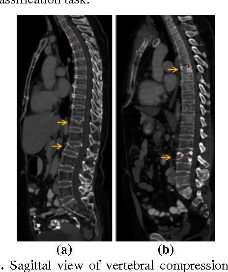 Figure 1 for Osteoporotic and Neoplastic Compression Fracture Classification on Longitudinal CT