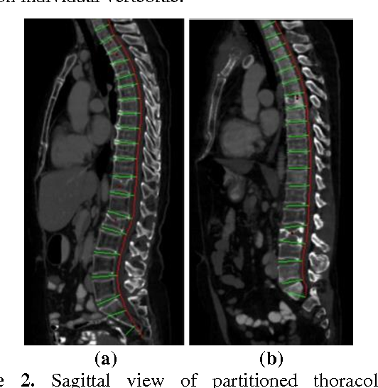 Figure 3 for Osteoporotic and Neoplastic Compression Fracture Classification on Longitudinal CT